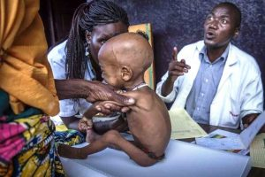 nurses-at-the-batouri-nutrition-centre-weigh-a-severely-malnourished-child-photo-credit-unhcr